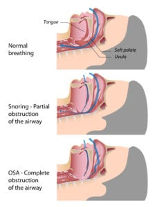 Diagram of Normal breathing Partial Obstruction and OSA
