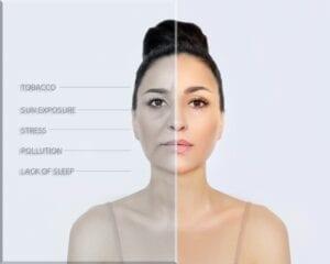 Lack of Sleep Causes Dull-Looking Skin